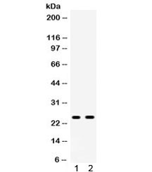 Western blot testing of 1) rat liver and 2) rat testis lysate with Apolipoprotein A I antibody. Predicted molecular weight ~30 kDa.