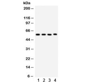 Western blot testing of 1) rat lung, 2) mouse lung, 3) human placenta, 4) Jurkat lysate with CYP1A1 antibody. Predicted/observed molecular weight ~58 kDa.