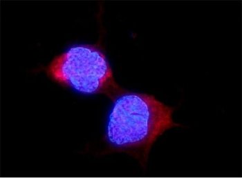 Immunofluorescent staining of FFPE human U-2 OS cells with ALDH2 antibody (red) and DAPI nuclear stain (blue). HIER: steam section in pH6 citrate buffer for 20 min.