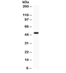 Western blot testing of rat brain lysate with ADRB2 antibody. Predicted molecular weight ~46 kDa, but commonly observed at up to 85 kDa.