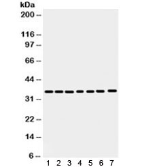 Western blot testing of 1) rat spleen, 2) rat stomach, 3) human HeLa, 4) 22RV1, 5) A549, 6) MCF7 and 7) SW620 antibody with Annexin A3 antibody. Predicted/observed molecular weight ~36 kDa.