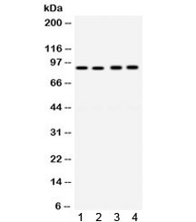 Western blot testing of human 1) Raji, 2) A549, 3) MCF7, and 4) SW620 cell lysate with anti-CD19 antibody. Expected molecular weight: 60~100 kDa depending on glycosylation level.