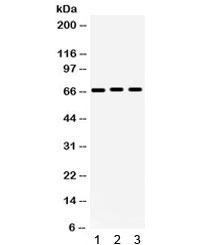 Western blot testing of human 1) 293, 2) A549 and 3) PANC cell lysate with KCNA5 antibody. Expected/observed molecular weight ~67 kDa.