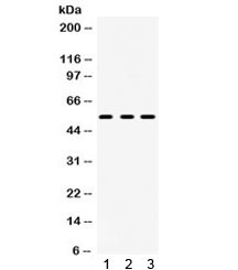 Western blot testing of 1) rat brain, 2) rat testis and 3) human U-87 MG lysate with 5HT2AR antibody. Predicted/observed molecular weight ~53 kDa.
