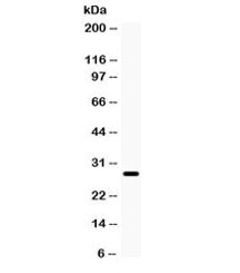 Western blot testing of rat eye lysate with AQP0 antibody. Observed molecular weight: 28-60 kDa depending on level of glycosylation.