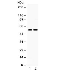 Western blot testing of 1) rat brain and 2) human U87 lysate with 5HT2B Receptor antibody. Predicted/observed molecular weight ~54 kDa.