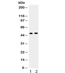 Western blot testing of 1) rat liver and 2) human HeLa lysate with Angiotensin II type-2 receptor antibody. Predicted/observed molecular weight ~47 kDa.