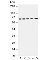 Western blot testing of 1) rat brain, 2) rat testis, 3) human SGC-7901, 4) 22RV1 and 5) MCF7 lysate with APLP1 antibody. Expected molecular weight: 76 kDa (unmodified), ~86 kDa (soluble/glycosylated form), 92~95 kDa (mature form).