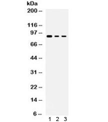 Western blot testing of human 1) MCF7, 2) COLO320 and 3) PANC lysate with ATXN1 antibody. Expected/observed molecular weight ~87 kDa.