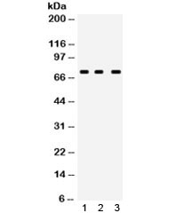Western blot testing of human 1) MCF7, 2) A549 and 3) PANC lysate with ABCG5 antibody. Expected/observed molecular weight ~73 kDa.