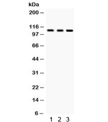 Western blot testing of 1) rat testis, 2) rat brain and 3) human HeLa lysate with CYLD antibody. Predicted/observed molecular weight ~107 kDa.