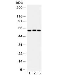 Western blot testing of 1) rat liver, 2) human placenta, 3) A549 lysate with Heparanase 1 antibody. Predicted molecular weight: 61 kDa (isoform 1), ~53 kDa (isoform 2/3), ~43 kDa (isoform 4).