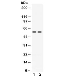Western blot testing of mouse 1) heart and 2) HEPA lysate with anti-Cd2 antibody. Predicted molecular weight: 38/50 kDa (unmodified/glycosylated).