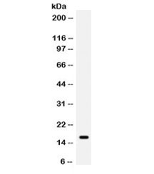 Western blot testing of human MCF7 cell lysate with GIP antibody. Expected molecular weight ~17 kDa.