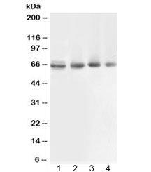 Western blot testing of 1) rat muscle, 2) human COLO320, 3) human 22RV1 and 4) human PANC lysate with ABCB10 antibody at 0.5ug/ml. Expected molecular weight: ~79 kDa (full), ~65 kDa (cleaved mitochondrial targeting sequence (amino acids 1-105)).
