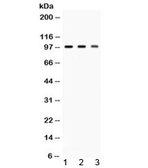 Western blot testing of 1) rat brain, 2) mouse brain and 3) HeLa lysate with AGO2 antibody at 0.5ug/ml. Expected molecular weight ~97 kDa.