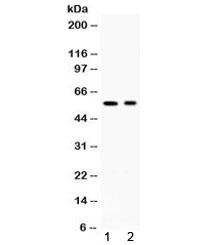 Western blot testing of 1) rat testis and 2) human HeLa lysate with AIRE antibody at 0.5ug/ml. Expected molecular weight ~58 kDa.