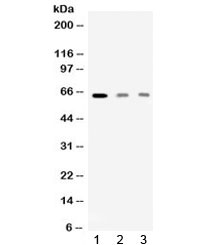 Western blot testing of 1) rat skeletal muscle, 2) human HeLa and 3) human MCF7 lysate with AMHR2 antibody at 0.5ug/ml. Predicted molecular weight: ~63 kDa.