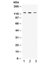Western blot testing of 1) rat thymus, 2) mouse thymus and 3) MCF7 lysate with CIITA antibody at 0.5ug/ml. Predicted/observed molecular weight ~123 kDa.