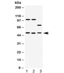Western blot testing of 1) rat brain, 2) mouse brain and 3) human HeLa lysate with AZIN2 antibody at 0.5ug/ml. Predicted molecular weight ~50 kDa.