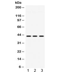 Western blot testing of 1) rat lung, 2) mouse brain and 3) human HeLa lysate with ACAA2 antibody at 0.5ug/ml. Predicted molecular weight ~42 kDa.