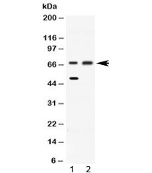 Western blot testing of 1) rat liver and 2) HeLa lysate with ACADVL antibody at 0.5ug/ml. Predicted molecular weight: 68-70 kDa.