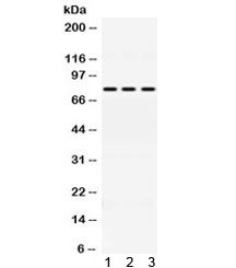 Western blot testing of 1) rat liver, 2) mouse HEPA and 3) A549 lysate with ACSL1 antibody at 0.5ug/ml. Predicted molecular weight ~78 kDa.