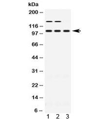 Western blot testing of 1) rat skeletal muscle, 2) mouse skeletal muscle and 3) human HT080 lysate with ACTN3 antibody at 0.5ug/ml. Predicted molecular weight ~103 kDa.