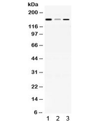 Western blot testing of 1) rat brain, 2) mouse liver and 3) human HepG2 lysate with ADAMTS13 antibody at 0.5ug/ml. Predicted/observed molecular weight ~154 kDa.
