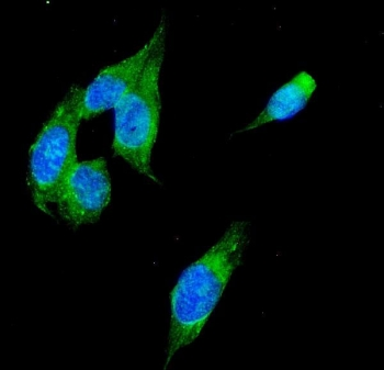 Immunofluorescent staining of FFPE human U-2 OS cells with Alcohol dehydrogenase antibody (green) and DAPI nuclear stain (blue). HIER: steam section in pH6 citrate buffer for 20 min.