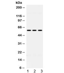 Western blot testing of 1) rat liver, 2) mouse HEPA and 3) human HeLa lysate with ALDH7A1 antibody at 0.5ug/ml. Predicted molecular weight ~58 kDa.