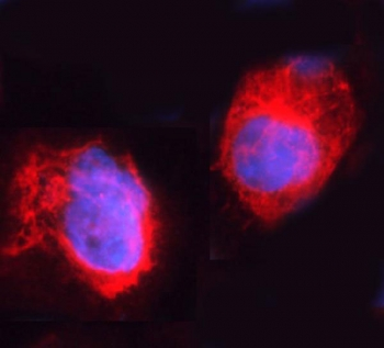 Immunofluorescent staining of FFPE human A431 cells with ARHGEF1 antibody (red) and DAPI nuclear stain (blue). HIER: steam section in pH6 citrate buffer for 20 min.