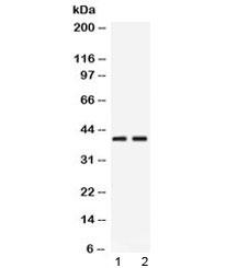 Western blot testing of 1) rat pancreas and 2) human HeLa lysate with PSAT1 antibody at 0.5ug/ml. Predicted/observed molecular weight ~40 kDa.