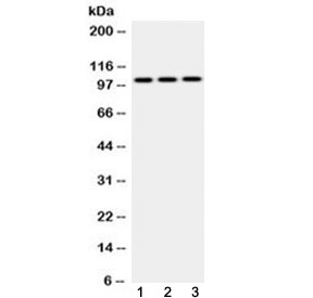 Western blot testing of 1) rat testis, 2) mouse brain and 3) human MCF7 cell lysate with AP2B1 antibody at 0.5ug/ml. Predicted molecular weight ~105 kDa.