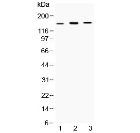 Western blot testing of 1) rat RH-35, 2) mouse Hepa1-6 and 3) human HepG2 cell lysate with ATP7B antibody at 0.5ug/ml. Predicted molecular weight ~157 kDa.