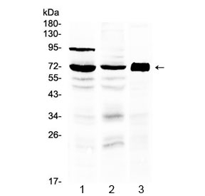 Western blot testing of 1) rat testis, 2) mouse testis and 3) human placenta lysate with 5HT3A Receptor antibody at 0.5ug/ml. Predicted molecular weight ~55 kDa, observed here at ~72 kDa.