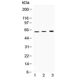 Western blot testing of 1) rat stomach, 2) mouse stomach and 3) human SGC-7901 (human gastric cancer) lysate with ATP4B antibody at 0.5ug/ml. Predicted molecular weight ~34 kDa (core peptide), ~52 kDa (beta subunit precursor), 60-80 kDa (glycosylated form).