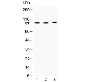 Western blot testing of 1) rat testis, 2) mouse testis and 3) MCF7 lysate with ADAM2 antibody at 0.5ug/ml. Predicted molecular weight ~82 kDa, but can be observed at ~100 kDa.