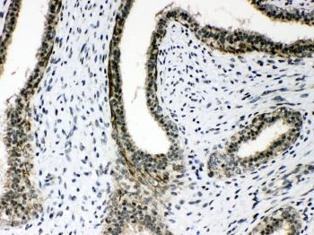 IHC testing of FFPE human breast cancer tissue with AGO1 antibody at 1ug/ml. Required HIER: steam section in pH6 citrate buffer for 20 min and allow to cool prior to testing.
