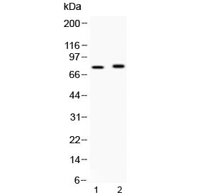 Western blot testing of 1) rat brain and 2) mouse brain lysate with ACSL5 antibody at 0.5ug/ml. Predicted molecular weight ~76 kDa.