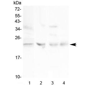 Western blot testing of 1) human HeLa, 2) rat ovary, 3) rat lung and 4) mouse ovary lysate with TIMP1 antibody at 0.5ug/ml. Expected molecular weight: 23-28 kDa depending on the level of glycosylation.
