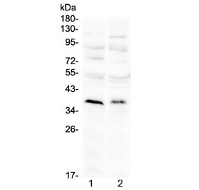 Western blot testing of 1) rat brain and 2) mouse brain with ATOH1 antibody at 0.5ug/ml. Predicted molecular weight ~38 kDa.