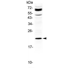 Western blot testing of human HepG2 cell lysate with ANGPTL8 antibody at 0.5ug/ml. Predicted molecular weight ~22 kDa.