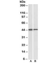 Western blot testing of mouse [A] and rat [B] liver lysate with ACAT1 antibody at 0.1ug/ml. Predicted molecular weight: ~45kDa.