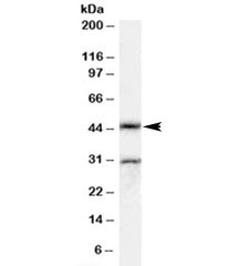Western blot testing of rat testis lysate with Actl7b antibody at 0.5ug/ml. The expected ~45kDa band and the additional ~30kDa band are both blocked by the immunizing peptide.