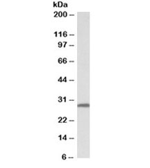 Western blot testing of human skin lysate with 14-3-3 sigma antibody at 0.03ug/ml. Predicted molecular weight: ~28kDa.