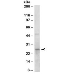 Western blot testing of human duodenum lysate with 15-PGDH antibody at 0.1ug/ml. Predicted molecular weight: ~29kDa.