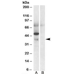 Western blot testing of human placenta lysate with Apolipoprotein L4 antibody at 0.5ug/ml with [B] and without [A] blocking/immunizing peptide. Predicted molecular weight: ~39 kDa.