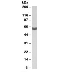 Western blot testing of MDA-MB-231 lysate with AMHR2 antibody at 1ug/ml. Predicted molecular weight: ~63/52/52kDa (isoforms 1/2/3).