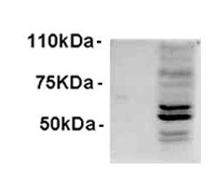 Western blot testing of IFNb-treated WI-38 lysate with AIM2 antibody at 1ug/ml. Predicted molecular weight: 40~45kDa.